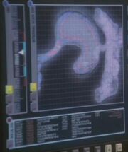 Porthos stomach scan