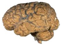 Human brain NIH