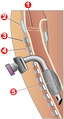 Tracheotomy neck profile.png