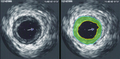 IVUS of CAD.png