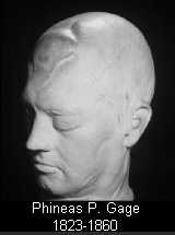 Phineas Gage Death Mask