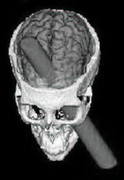 Phineas Gage CGI