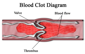 Blood clot diagram