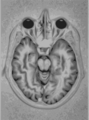 Brain Mri nevit.svg
