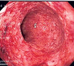 CD colitis 2