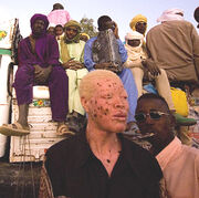 Albino man from niger