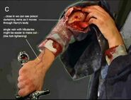 Harry's wound because of the bite of Slytherin's Basilisk 03