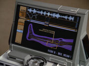 Riker&#39;s leg scan
