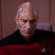 Picard with dermaplastic grafts