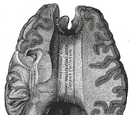 Corpus callosum